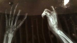 boy finger